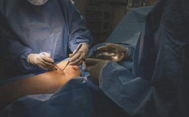 a group of surgeon and nurses operating on a chinese male patient's leg in operating room